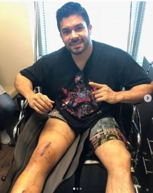 Jerry Rivera muestra resultado de cirugía luego de estrepitosa caída en el escenario